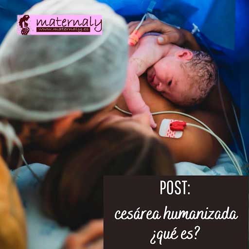 Qué es la cesárea humanizada