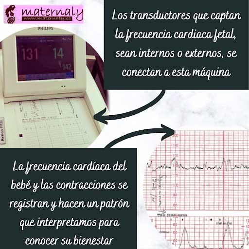 Monitorización de la frecuencia cardiaca
